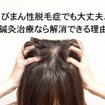 びまん性脱毛症でも大丈夫、鍼灸治療なら解消できる理由